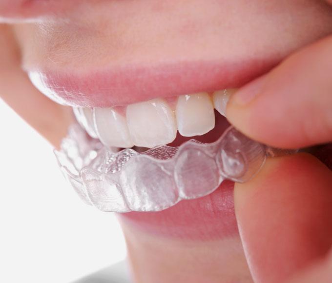 Unsichtbare Zahnspange. Aligner-Schienen für Jugendliche