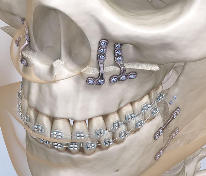 Kombiniert kieferorthopädischer / kieferchirurgischer Ansatz (Dysgnathiechirurgie)