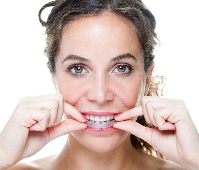 Unsichtbare Zahnspange, Aligner-Behandlung